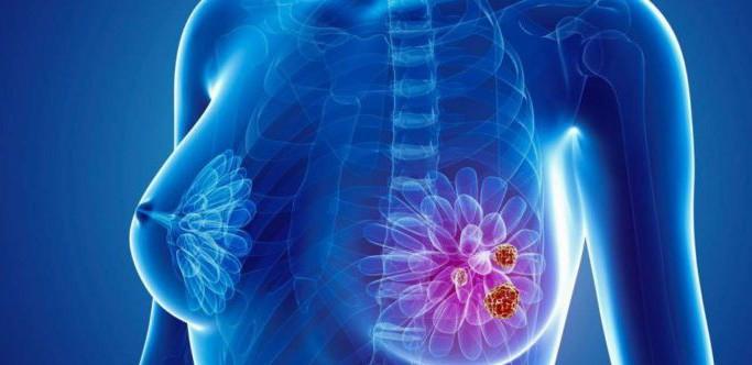 Hình ảnh của người ung thư vú