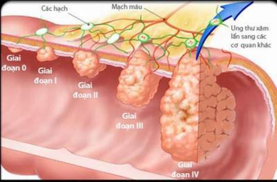 Các giai đoạn phát triển của ung thư dạ dày