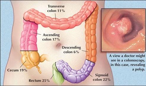 Nên đi khám và tầm soát ung thư dạ dày thường xuyên