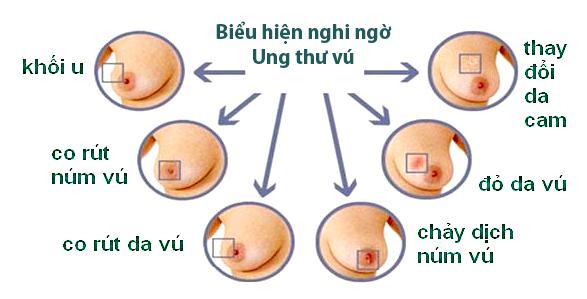 Những dấu hiệu nhận biết Ung thư vú