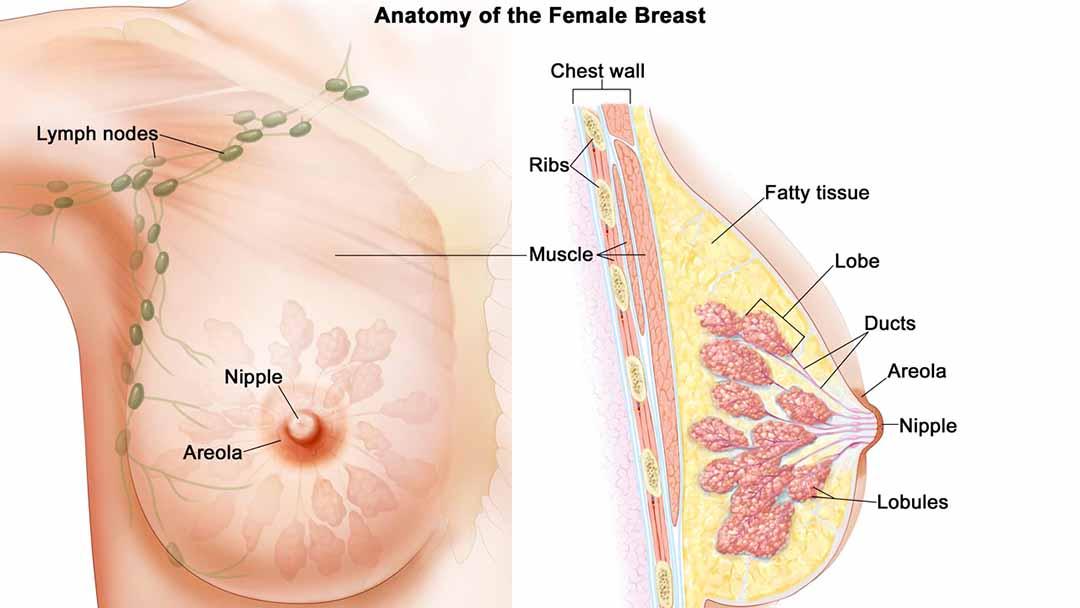 Ung thư vú có nhiều dạng