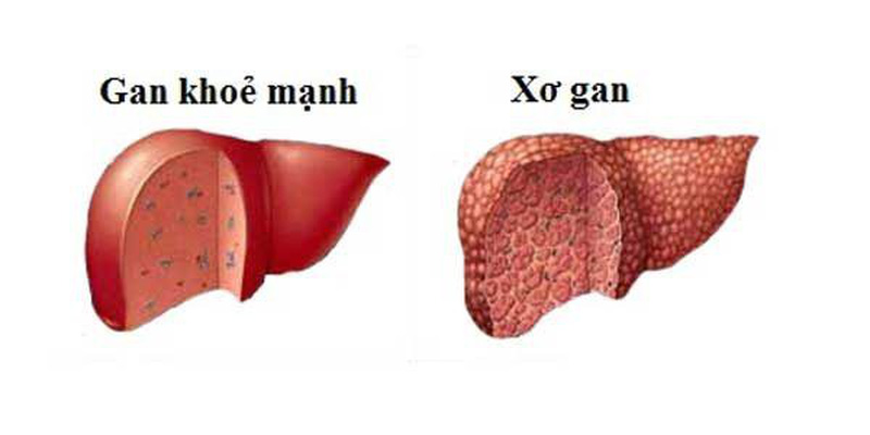 Hình ảnh gan khỏe mạnh và gan bị bệnh