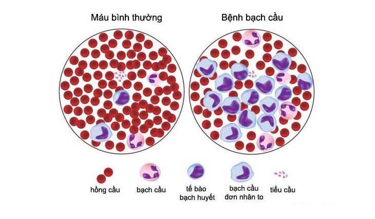 Bệnh bạch cầu dòng tủy lympho cấp tính và mãn tính