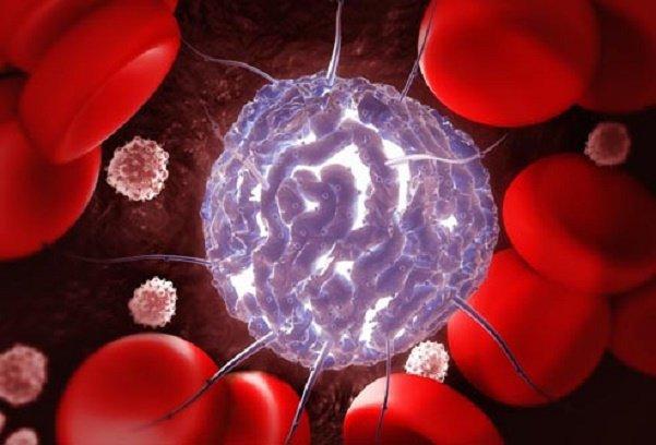 Biến chứng nguy hiểm của bệnh bạch cầu dòng tuỷ lympho