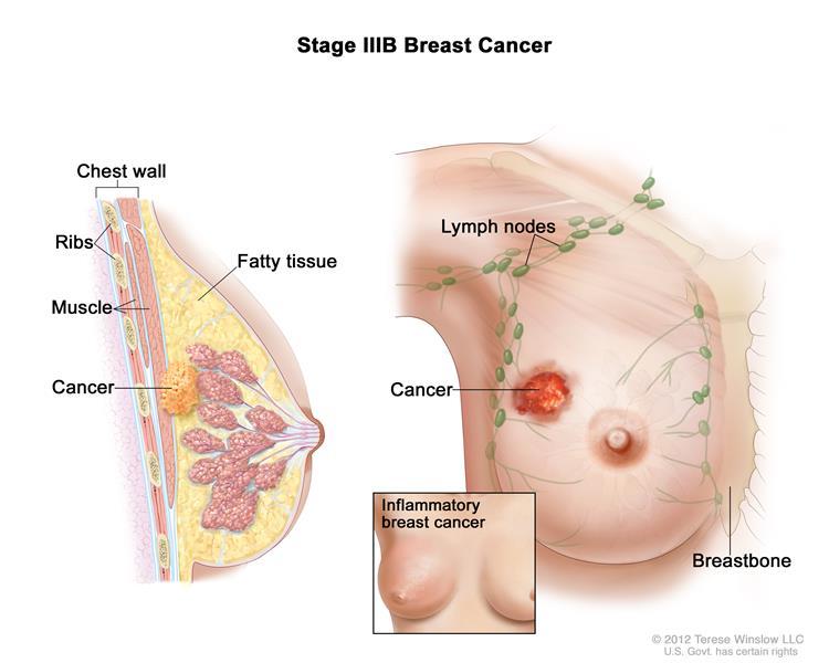 Hình ảnh Ung thư vú giai đoạn 3