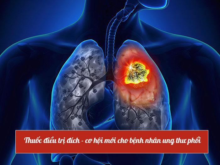 Ung thử phổi bắt buộc phải dùng thuốc điều trị
