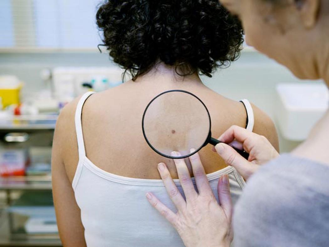 Các bất thường trên da có thể là dấu hiệu ung thư sớm