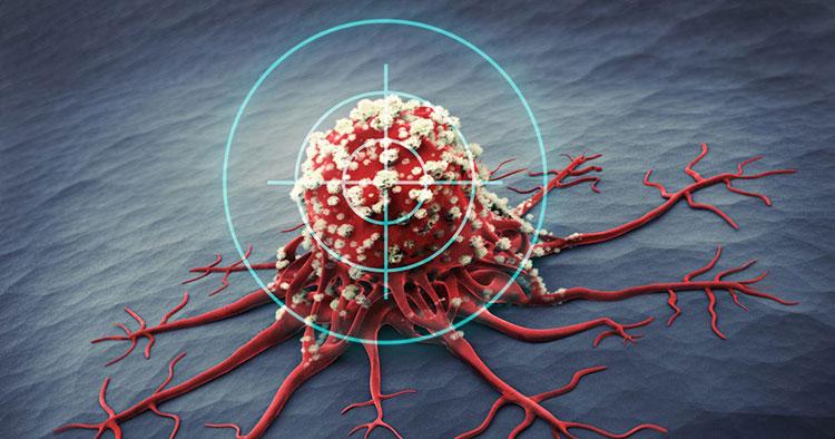 Cách phát hiện dấu hiệu ung thư sớm