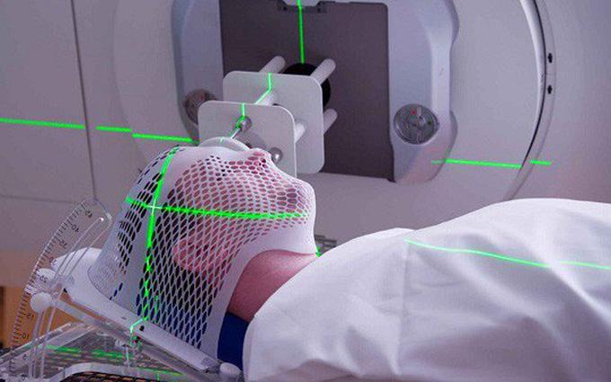 Hình ảnh xạ trị ung thư