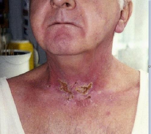 Tác dụng phụ của xạ trị ung thư