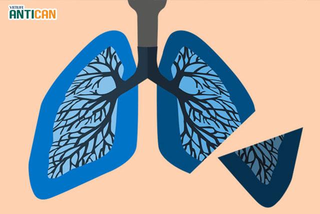 Điều trị ung thư phổi bằng phương pháp phẫu thuật