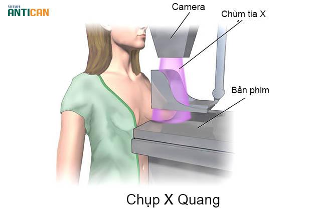 Chụp X quang là một trong phương pháp xét nghiệm ung thư vú