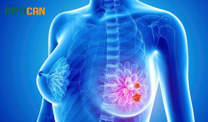 Ung thư vú nguyên nhân và cách phòng ngừa