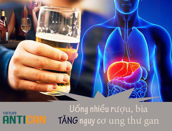 Uống nhiều rượu bia nguy cơ cao ung thư gan