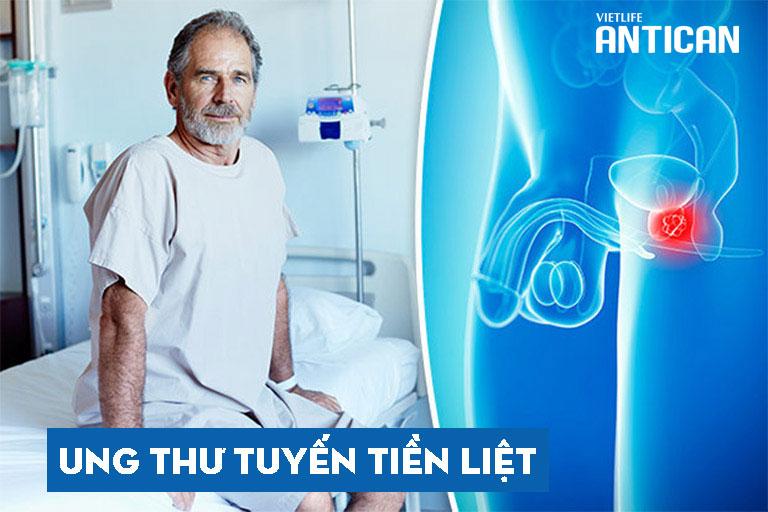 Ung thư tuyến tiền liệt phổ biến ở nam giới