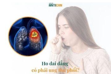Ho dai dẳng có phải ung thư phổi?